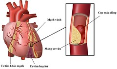 Human Heart Coronary Problem with Cholesterol Plaque Build up (thulien.dkh) Tags: arteries atheromas atherosclerosis attack biology biomedical blocked blood cardiology cardiovascular cells cholesterol circulation circulatory clipart clogged clot coronary diet disease fat flow health heart high illustration lipids medical myocardialinfarction plaques pressure stenosis stroke system vector vessel artery heartbeat hospital human internal medicine sick vein ventricle diagram physiology scientific valve map indonesia