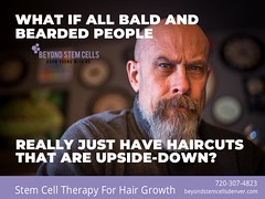 upside-down-haircuts1 (beyondstemcellsdenver) Tags: bald mail patter baldness haircuts bearded beard stem cell therapy hair regrowth