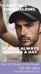hat1 (beyondstemcellsdenver) Tags: balding bald baldness