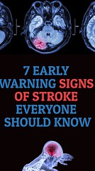 7 Early Warning Signs of Stroke Everyone Should Know (healthylife2) Tags: 7 early warning signs stroke everyone should know