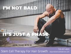 phase1 (beyondstemcellsdenver) Tags: baldness bald balding