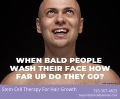 bald-face-wash1 (beyondstemcellsdenver) Tags: bald balding baldness