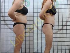 liporeduce-fitness-tratamento-gordura-medidas (43)
