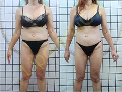 liporeduce-fitness-tratamento-gordura-medidas (42)