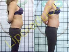 liporeduce-fitness-tratamento-gordura-medidas (40)