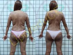 liporeduce-fitness-tratamento-gordura-medidas (38)