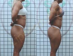 liporeduce-fitness-tratamento-gordura-medidas (31)