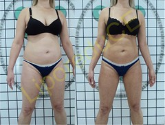 liporeduce-fitness-tratamento-gordura-medidas (28)