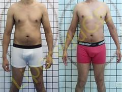 liporeduce-fitness-tratamento-gordura-medidas (25)