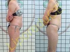 liporeduce-fitness-tratamento-gordura-medidas (23)