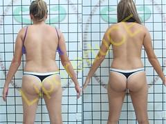 liporeduce-fitness-tratamento-gordura-medidas (21)