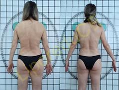 liporeduce-fitness-tratamento-gordura-medidas (17)