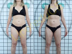 liporeduce-fitness-tratamento-gordura-medidas (15)