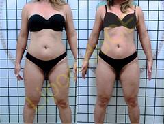 liporeduce-fitness-tratamento-gordura-medidas (1)