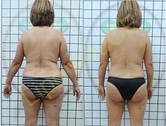 liporeduce-plussize-tratamento-reducao-medidas (37)