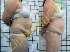 liporeduce-plussize-tratamento-reducao-medidas (3)