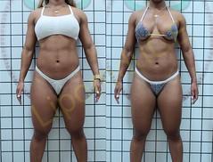 liporeduce-fitness-tratamento-gordura-medidas (51)