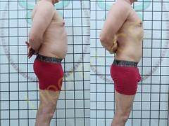 liporeduce-fitness-tratamento-gordura-medidas (49)