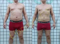 liporeduce-fitness-tratamento-gordura-medidas (48)