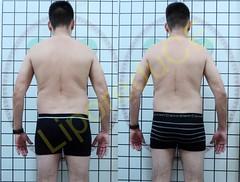 liporeduce-fitness-tratamento-gordura-medidas (46)