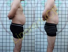 liporeduce-fitness-tratamento-gordura-medidas (45)
