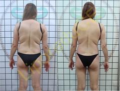 liporeduce-fitness-tratamento-gordura-medidas (44)