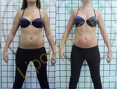 liporeduce-fitness-tratamento-gordura-medidas (39)