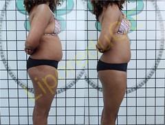 liporeduce-fitness-tratamento-gordura-medidas (34)