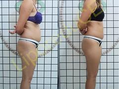 liporeduce-fitness-tratamento-gordura-medidas (20)