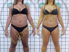 liporeduce-fitness-tratamento-gordura-medidas (4)