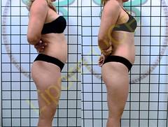 liporeduce-fitness-tratamento-gordura-medidas (2)