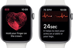 Apple Watch Series 4 helped user discover he has AFib heart condition (Read News) Tags: tech news afib apple condition discover heart helped series tecnology tegnology user watch