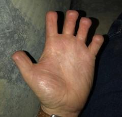 My fingers (fingertoeamputee) Tags: fingerstump fingeramputation