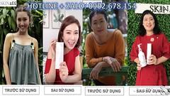 tắm trắng toàn thân bằng phương pháp tự nhiên Skin AEC Zalo 0902 678 154 (tamtrangskinaec) Tags: tắm trắng toàn thân bằng phương pháp tự nhiên skin aec zalo 0902 678 154