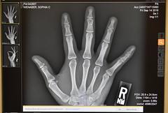 Sophia's Finger Injury - from Bailey (Pictures by Ann) Tags: sophia fingerinjury brokenbone finger xray