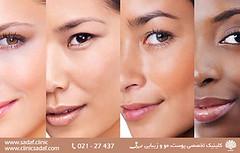 پژوهشهای جدید از تکامل رنگ پوست حکایت میکنند (sadafclinic2) Tags: جهت مطالعه ادامه مطالب به وب سایت httpwwwsadafclinic مراجعه کنید health skin laser diet clinic socialdeterminants diets beard clinical