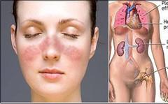 Người mắc bệnh lupus ban đỏ sống được bao lâu? (dieuthanhtran63) Tags: viknews bệnhlupusbanđỏsốngđượcbaolâu