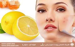 معجزه لیمو برای سلامت زیبایی (sadafclinic2) Tags: جهت مطالعه ادامه مطالب به وب سایت httpwwwsadafclinic مراجعه کنید health skin laser diet clinic socialdeterminants diets beard clinical