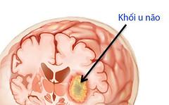 Bệnh u não sống được bao lâu? (ngocbaotrampham026) Tags: viknews unãosốngđượcbaolâu