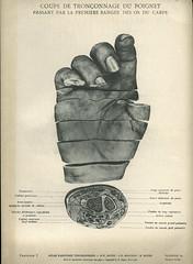 Anglų lietuvių žodynas. Žodis carpal bone reiškia riešo kaulų lietuviškai.