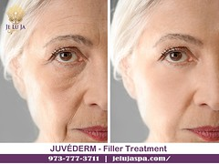 JUVÉDERM - Filler Treatment in Clifton (jelujaspa) Tags: juvéderm skintransformation skincareroutine skinrejuvenation skincare laser skin resurfacing treatment clifton treatments nj iv vitamin therapy best microblading near me weight loss microneedling acne rejuvenation face prp services care new jersey facial body contouring bodycontouringandweightlosstreatmentclifton newjersey bioidentical hormone replacement hair restoration products in medical spa botox fillers removal cost permanent tightening full for women