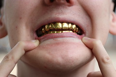 IMG_1224 (Steenvoorde Leen - 13.8 ml views) Tags: hedshot headshot face facial gebit tanden teeth vingers fingers 2019 doorn utrechtseheuvelrug fotoshoot photoshoot goud gold goldteeth goudentanden