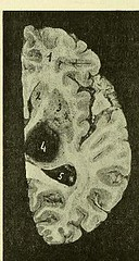 This image is taken from Page 108 of Le cerveau sénile [electronic resource] (Medical Heritage Library, Inc.) Tags: cerebrovascular disorders brain atrophy kingscollegelondon ukmhl medicalheritagelibrary europeanlibraries date1906 idb21295505