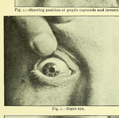 This image is taken from Further investigations on accommodation : the so-called Sanson-Purkinje reflex image of the anterior lens surface, being papers read in the Section of Physiology at the Annual General Meeting of the British Medical Association, Ox
