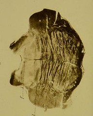 This image is taken from Ueber angeborenen Kernmangel (infantiler Kernschwund, Moebius) [electronic resource] (Medical Heritage Library, Inc.) Tags: eye optic atrophy costeff syndrome ucllibrary ukmhl medicalheritagelibrary europeanlibraries date1904 idb21638664
