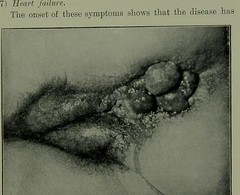 This image is taken from Page 139 of Diseases of the anus and rectum (Medical Heritage Library, Inc.) Tags: anus diseases rectal rcpedinburgh ukmhl medicalheritagelibrary europeanlibraries date1905 idb21720460