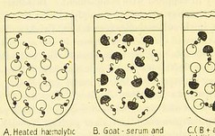 This image is taken from Page 32 of Serums, vaccines and toxines in treatment and diagnosis (Medical Heritage Library, Inc.) Tags: serodiagnosis immunisation passive toxins immunotherapy leedsuniversitylibrary ukmhl medicalheritagelibrary europeanlibraries date1909 idb21507594