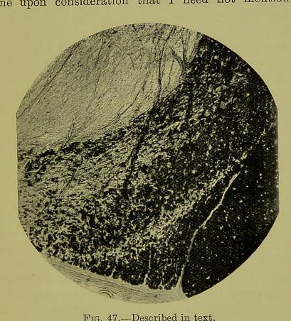 This image is taken from Page 99 of The croonian lectures on the degeneration of the neurone [electronic resource] : deivered before the Royal College of Physicians of London, on June 19, 21, 26 and 28, resectively, 1900