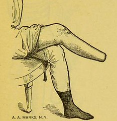 This image is taken from Page 47 of Manual of artificial limbs [electronic resource] : an exhaustive exposition of prothesis (Medical Heritage Library, Inc.) Tags: prostheses implants artificial limbs ucllibrary ukmhl medicalheritagelibrary europeanlibraries date1908 idb2129091x
