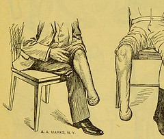 This image is taken from Page 37 of Manual of artificial limbs [electronic resource] : an exhaustive exposition of prothesis (Medical Heritage Library, Inc.) Tags: prostheses implants artificial limbs ucllibrary ukmhl medicalheritagelibrary europeanlibraries date1908 idb2129091x